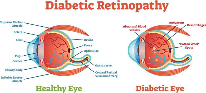 Diabetic retinopathy – Symptoms and Causes