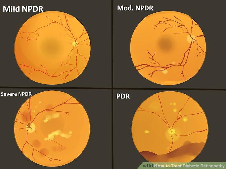 Diabetic retinopathy: Prevention