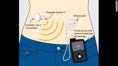 Artificial pancreas – A safe and effective treatment for type 1 diabetes